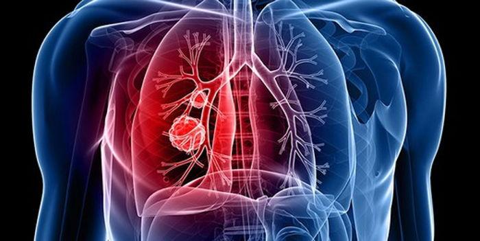 Rüyada Akciğer Görmek
